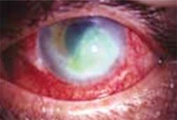 Acanthamoeba-Keratitis