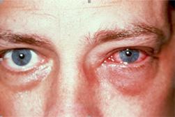 viralconjunctivitis01