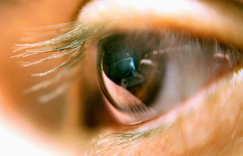Computer Eye Strain, Computer Vision Syndrome, CVS