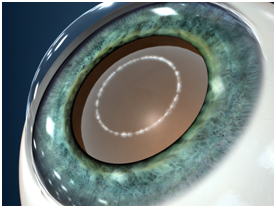 cataract surgery procedure