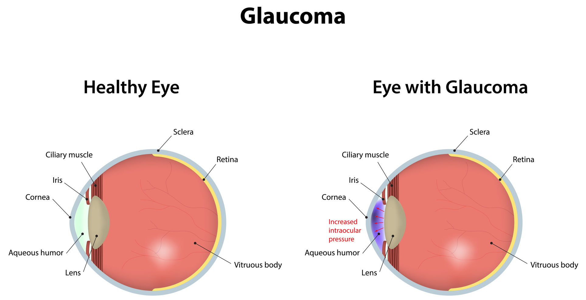 glaucoma eye