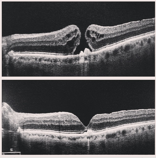 What is the recovery period for macular hole surgery?