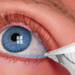 How to care for your dry eyes