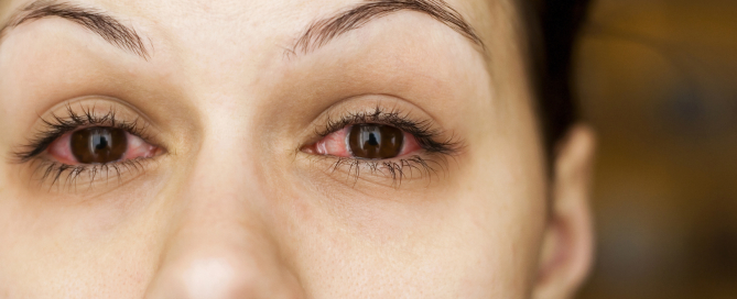 What is Conjunctivitis? What You Need to Know About Pink Eye