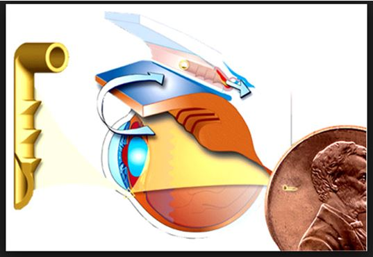 glaucoma symptoms and treatment