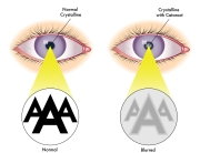 Causes of Cataract