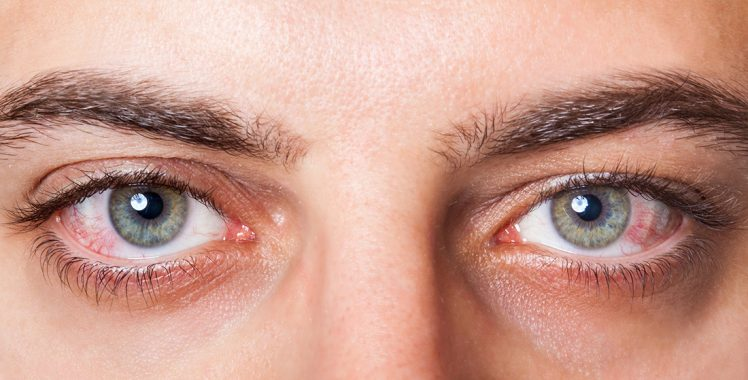 In the Pink: Getting the Right Treatment for Adenoviral Conjunctivitis