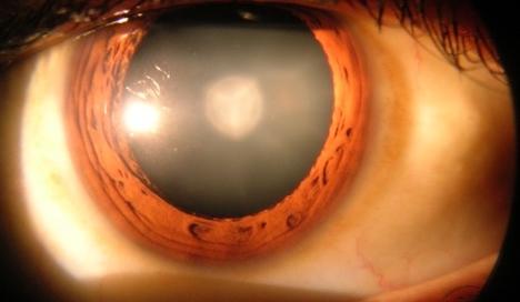 Cataract Procedures